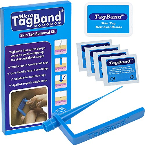 Micro TagBand Skin Tag Remover Device for Small to...