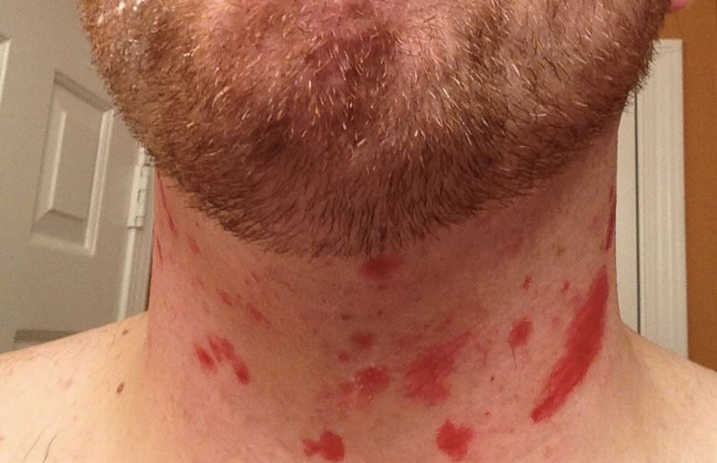 Straight Razor Cut on Neck