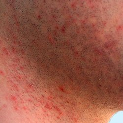 Razor Burn on Neck