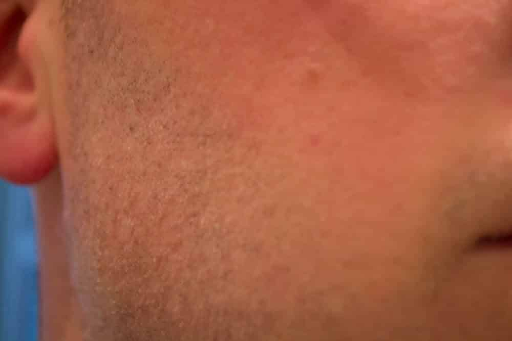 cheek close up after shaving with a dorco prime double edge safety razor - tools of men