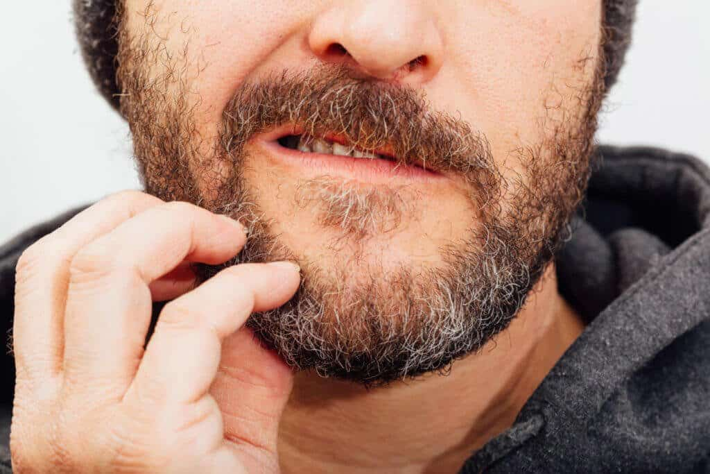 how to get rid of beard itch