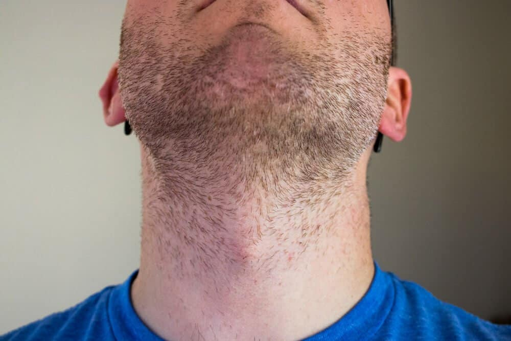 shaving against grain on neck