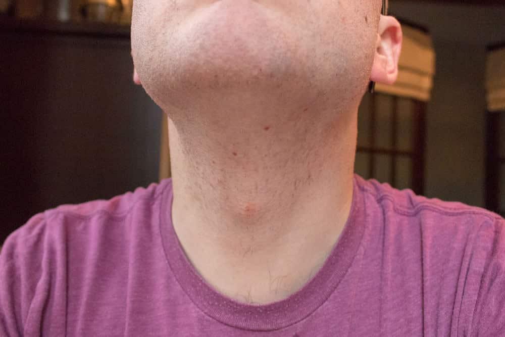 harrys review - razor nicks