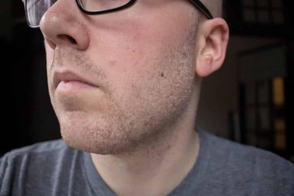 dollar shave club review - before picture