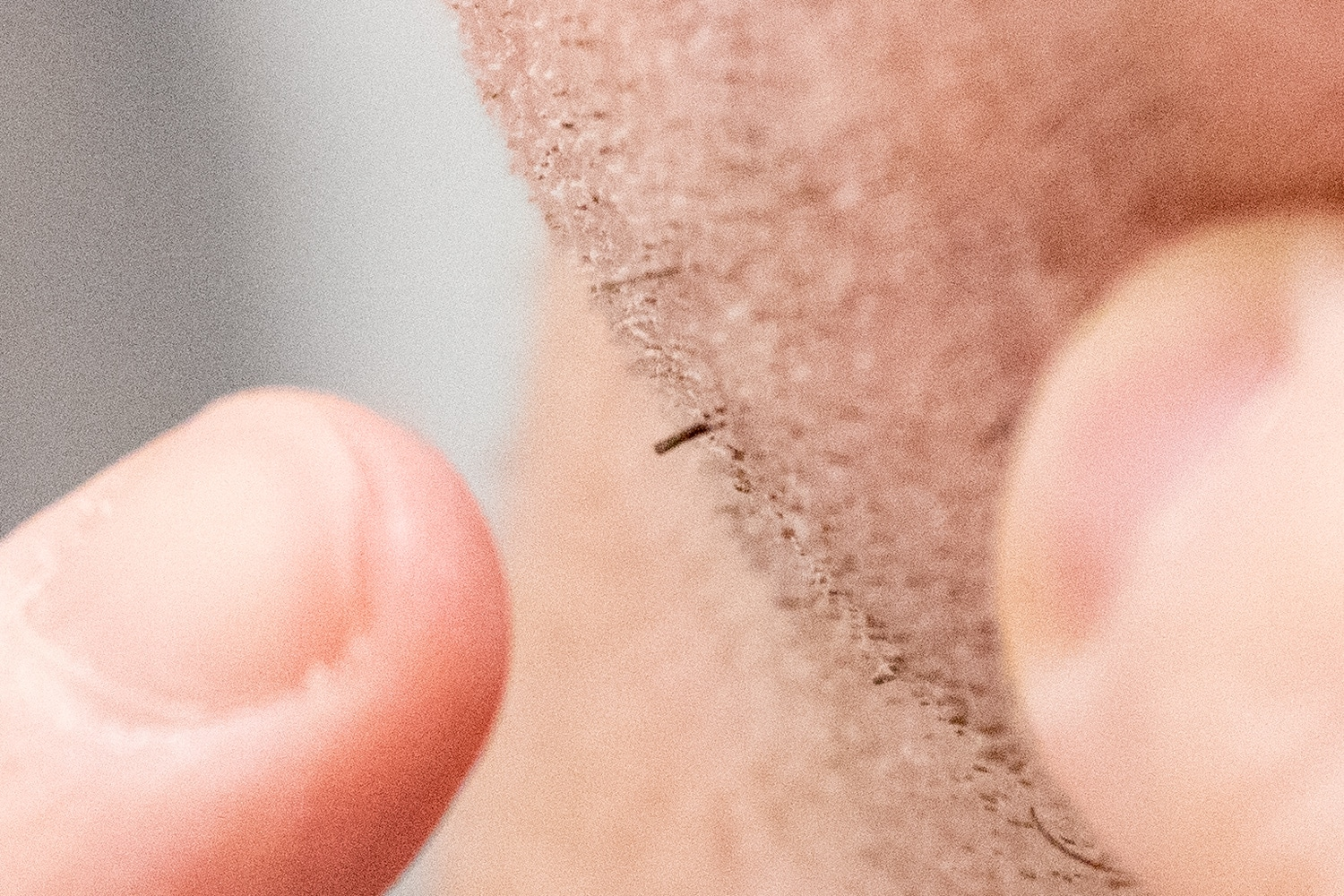 Why do multiple hairs grow out of one follicle