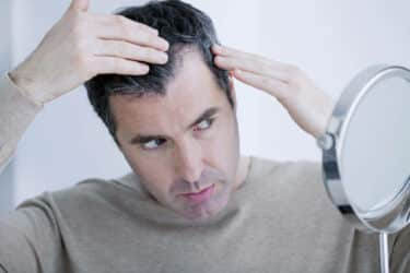 Are You Showing The Early Signs Of Balding?