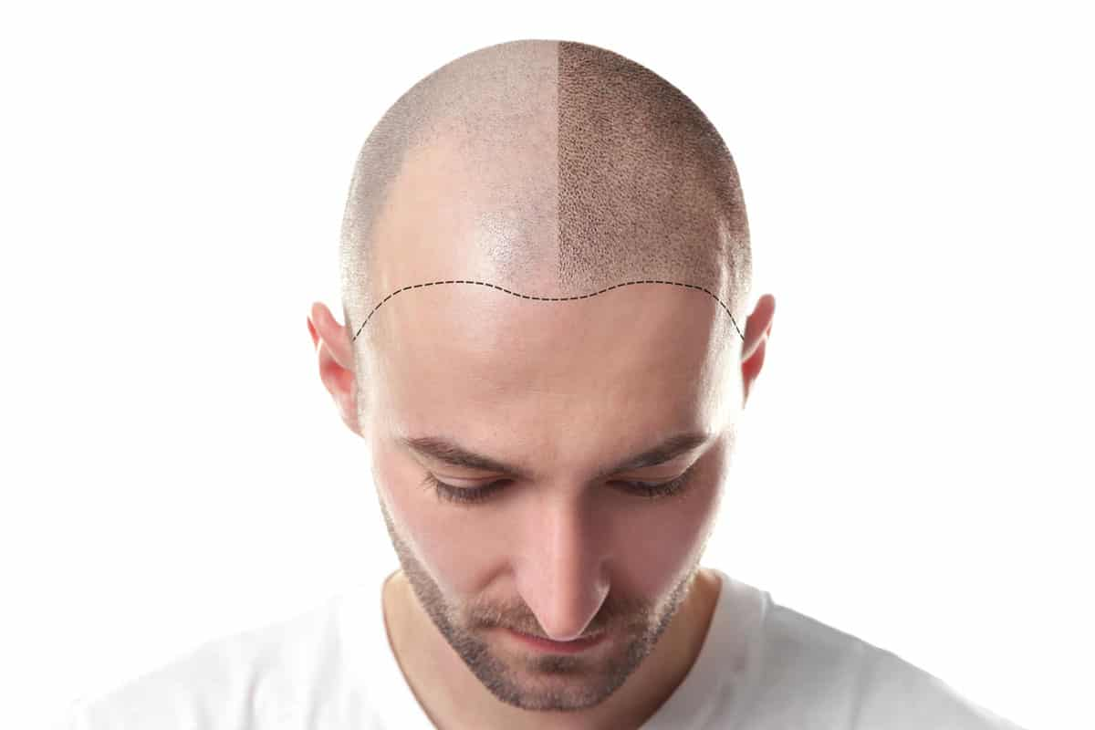 Scalp Micropigmentation - Hair Tattoo