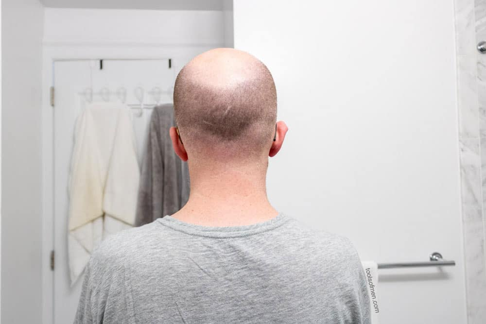hair length on back of head prior to shaving with HeadBlade Moto